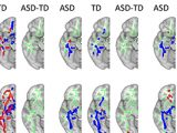 MRI scans revealed that connections between white matter in the brains of young people with autism were more symmetrical across hemispheres. (Credit: Ralph-Axel Müller)