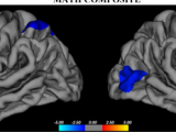 Researchers examine brain bases of academic difficulties in youth with fetal alcohol spectrum disorders